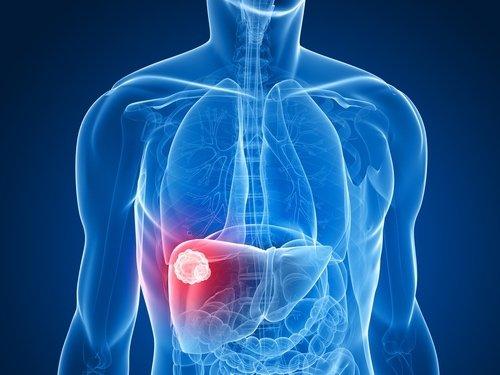 tumore al fegato perdita di peso