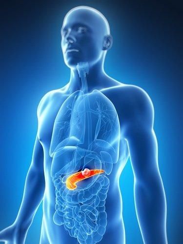 Tumore pancreatico
