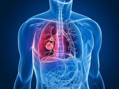 Tumore del polmone
