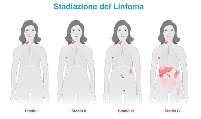 Stadiazione del Linfoma