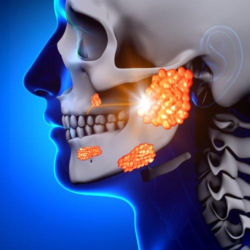 Tumore alle ghiandole salivari