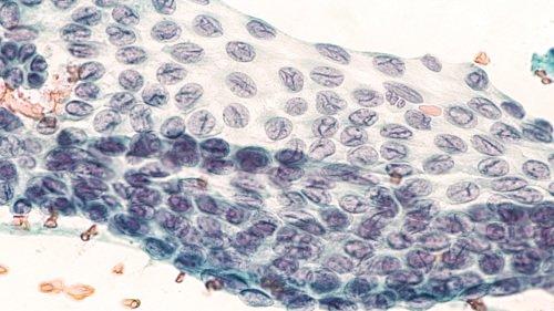 Papillary Thyroid cancer