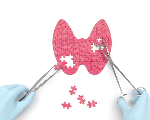 Cancro alla tiroide