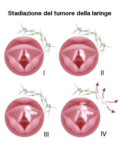Stadiazione del tumore della laringe