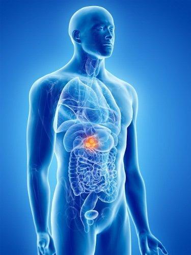 tumore della cistifellea