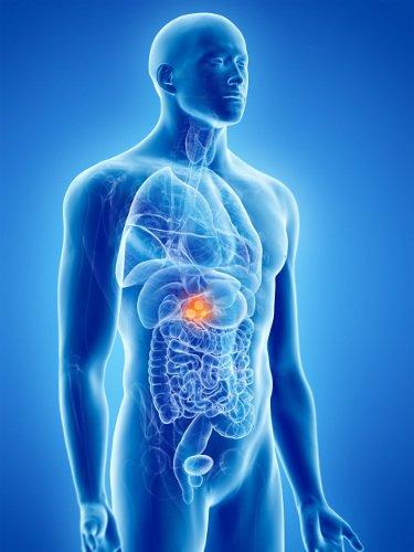 tumore della cistifellea o colecisti