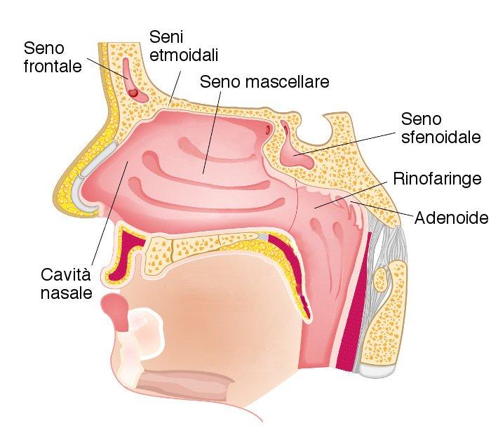 Tumore delle cavità nasali e dei seni paranasali