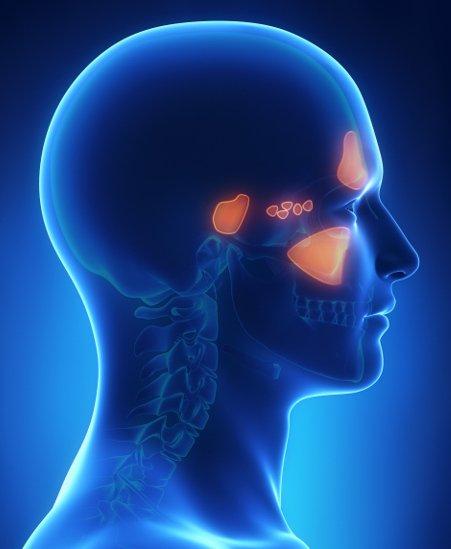 Tumore delle cavità nasali e seni paranasali