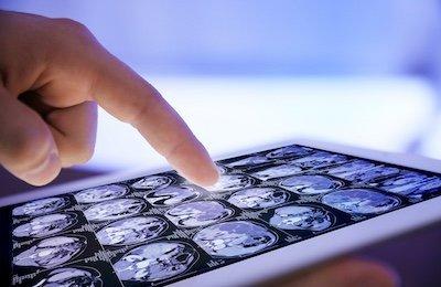 Teleconsulto e immagini diagnostiche