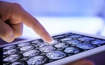 Teleconsulto? Oggi è possibile: i migliori percorsi di diagnosi e cura in soli 5 giorni