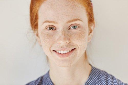 capelli rossi e pelle chiara