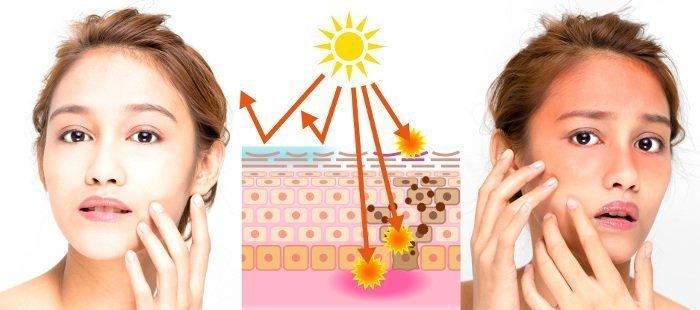 danni causati dai raggi UV