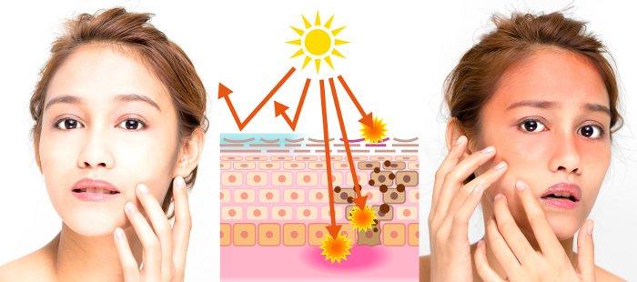 Melanoma: danni causati dai raggi UV