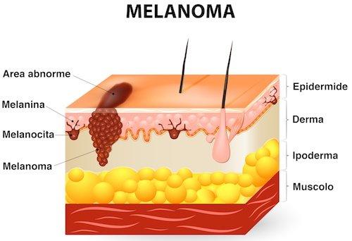 melanoma cutaneo - tumore della pelle