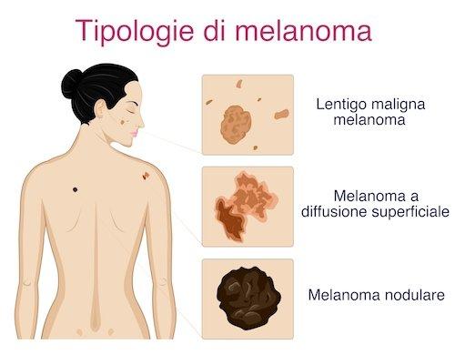tipologie del melanoma cutaneo