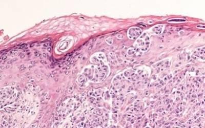La terapia adiuvante per la cura del Melanoma