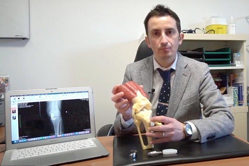 Protesi monocompartimentale di ginocchio dr. Biazzo